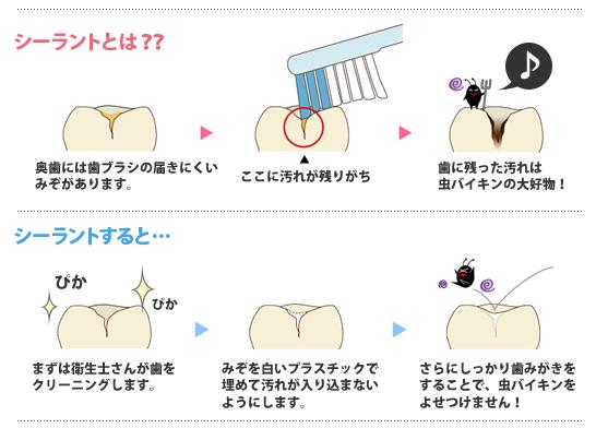 シーラントでむし歯予防